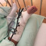 【一寸先は闇:part.1】右足首関節ずれて折れた体験記【手術篇】